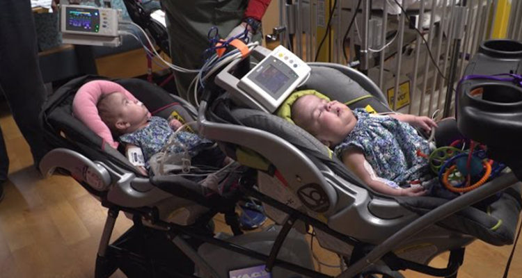 Conjoined twins joined at heart, liver separated - 3Dfabprint